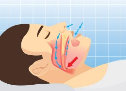 Animation of sleeping man with obstructed airway
